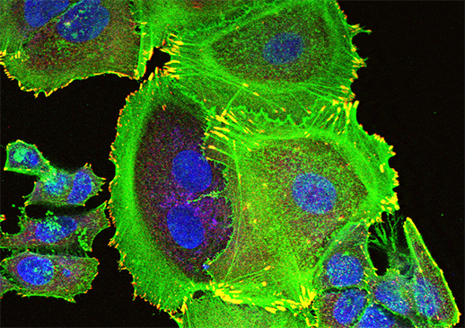 Communiqués de presse Inserm : Certains polluants organiques persistants pourraient augmenter l'agressivité du cancer du sein